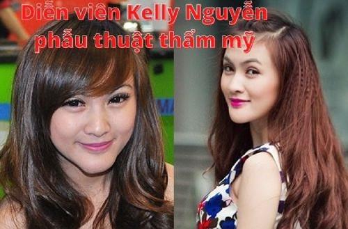 Diễn viên Kelly Nguyễn phẫu thuật thẩm mỹ